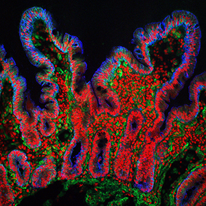A biopsy of the human small intestine visualised with a confocal laser scanning microscope
